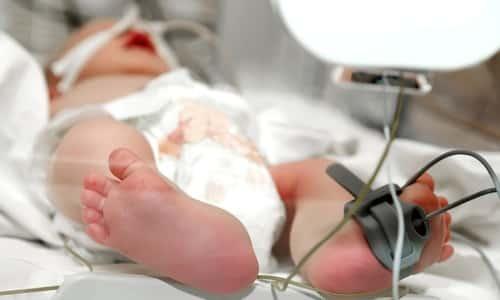 Birth Injuries or Death